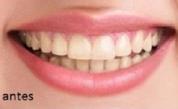 Odontoarte Dentista Em Recife Boa Viagem Clareamento Dental